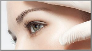 your skin after getting chemical peels in Glasgow is often in better condition than before